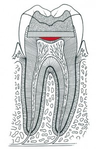 Traditional filling used to treat tooth decay