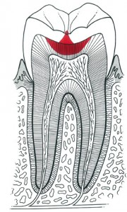 Tooth decay starts with plaque