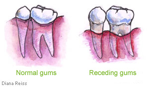 Receding Gums Treatment