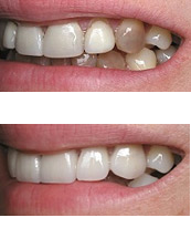 cosmetic-bonding-discoloration2