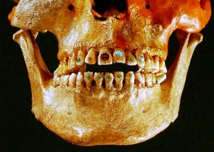 Mayan Dental Bling