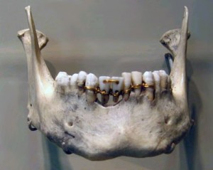 History of Ancient Dentistry